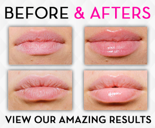 lipsmart-before-after71