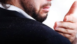 5 Things you Didn't Know about Dandruff